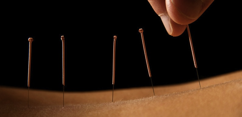 Acupuncture in Las Vegas