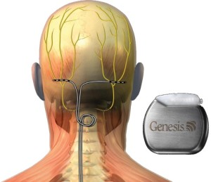 Occipital nerve stimulator