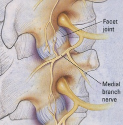 Medial Branch Nerve