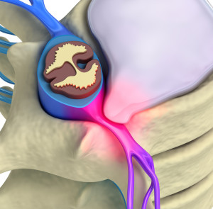 Sciatica Treatment Las Vegas