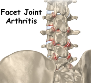 Spinal Arthritis Treatment