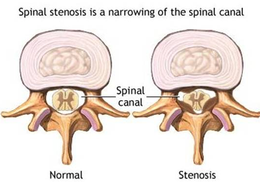 Spinal Stenosis Treatment Las Vegas