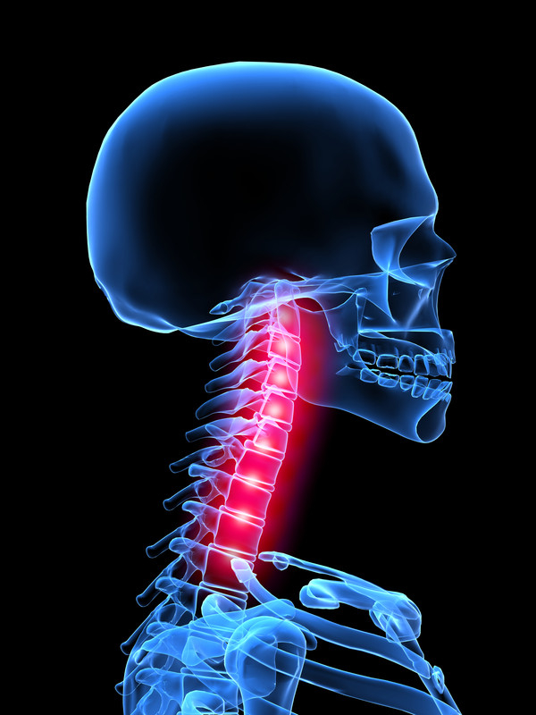 What are the symptoms of a failed cervical fusion?