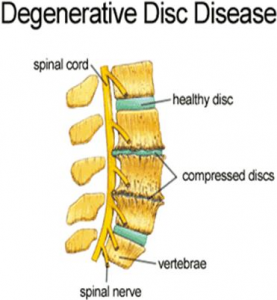 Degenerative Disc Disease Las Vegas